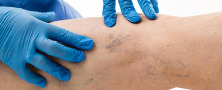 Varesil: Trattamento contro le vene varicose